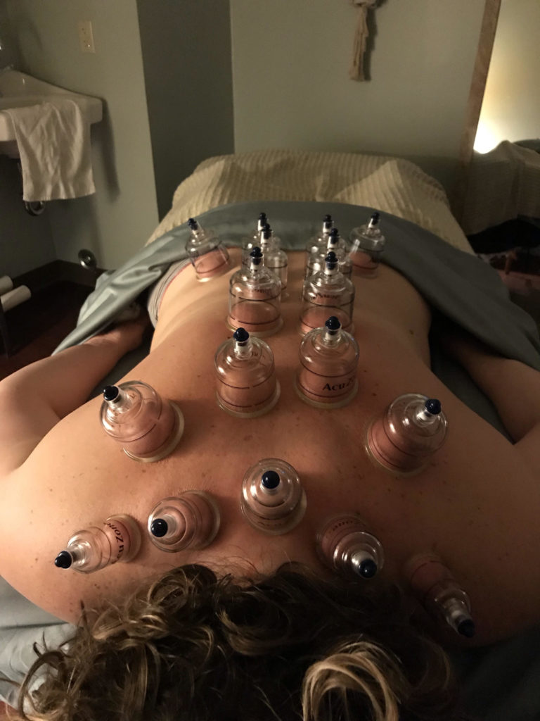 cupping at Absolute Health Chiropractic