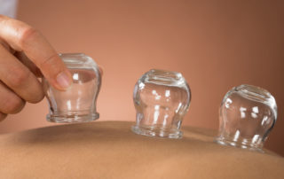 cupping treatment in portland, maine